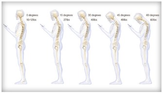 Effects of Forward Head Posture on the spine.